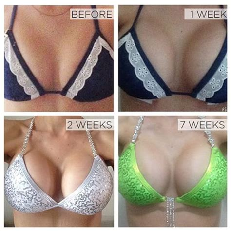 With The Breast Implants by Breast Implants Cost 2008