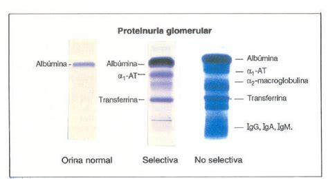 proteinograma o que club de nefrolog 237 a proteinograma urinario