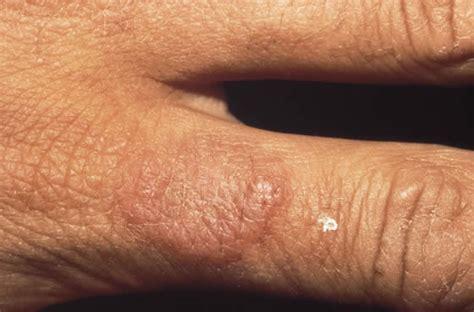 Wasserblasen An Den Fingern 5226 by Komische Blasen Am Finger