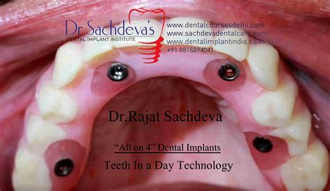full mouth    dental implant india full mouth