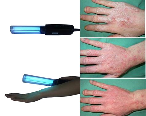 ultraviolet light therapy machine uv light therapy for vitiligo vitiligo skin information