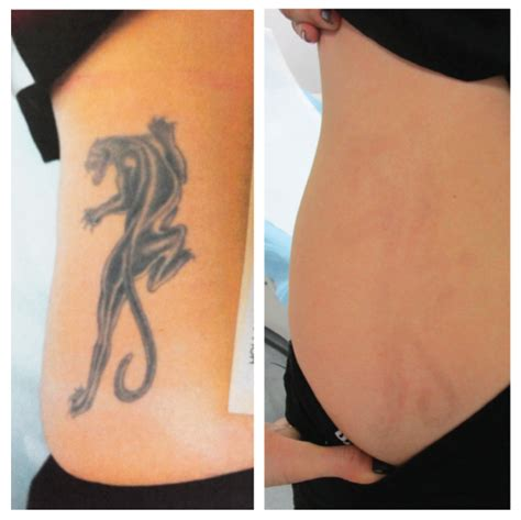 celebrity tattoo removal before after laser removal ageless splendor skin