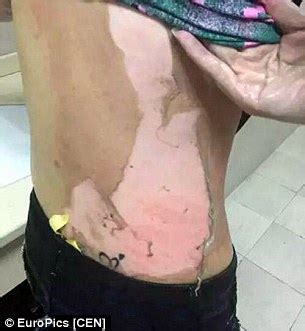 photos of hot water burns hot water challenge craze 11 years old hospitalised nnuya