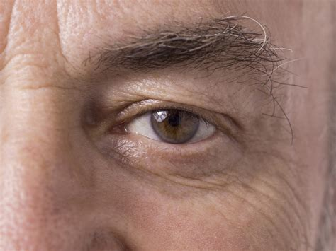 Mcgowans Droopy Eye Problem by Droopy Eyelid Conditions And Cures Alpine Eye Care