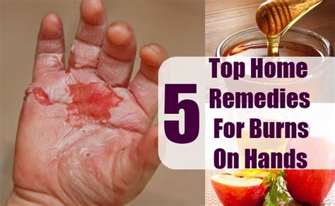 top 5 home remedies for burns on herbal treatment