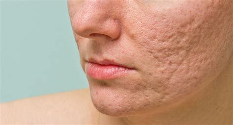 Acne Scar acne scars the consequences of acne eucerin
