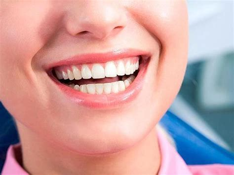 full mouth dental implants package cost price turkey