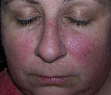 malar rash butterfly rash symptoms causes diagnosis and treatment