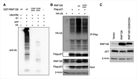 ubiquitin ligase rnf promotes cancer cell