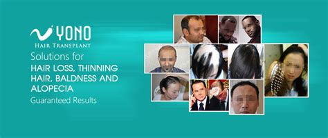 hair transplant cost in tianjin china hair transplant in yono in china an affordable and