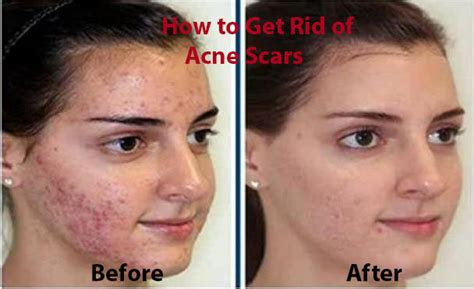 remove acne scars how to get rid of acne scars