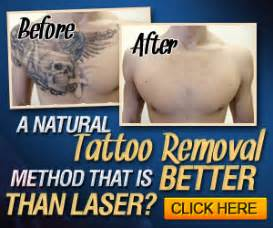tattoo removal options home removal methods magic
