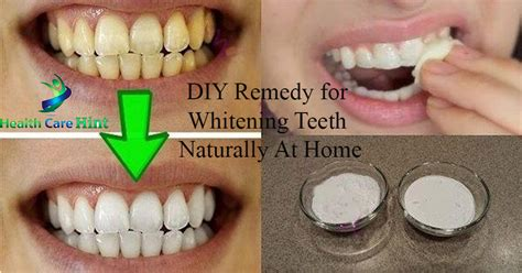 diy remedy for whitening teeth naturally at home