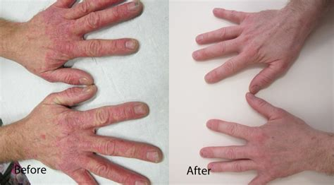 light therapy for psoriasis dermalux light therapy paul edmonds