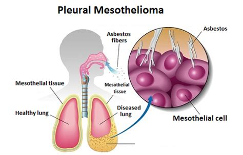 Pleural Mesothelioma Stages 5 by What Are The Symptoms Of Pleural Mesothelioma
