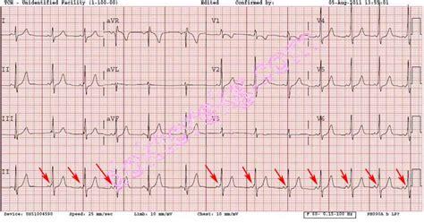 wolff parkinson white pattern ecg intermittent wpw syndrome in