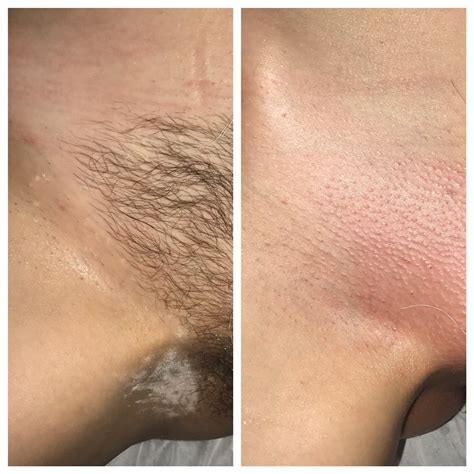 brazilian wax before and after photos before and after of a brazilian wax yelp