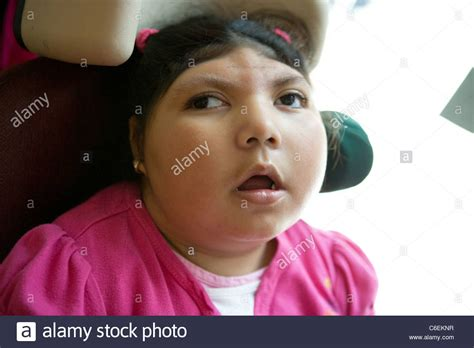 7 year old girl stock photo deaf blind seven year old girl portrait stock photo
