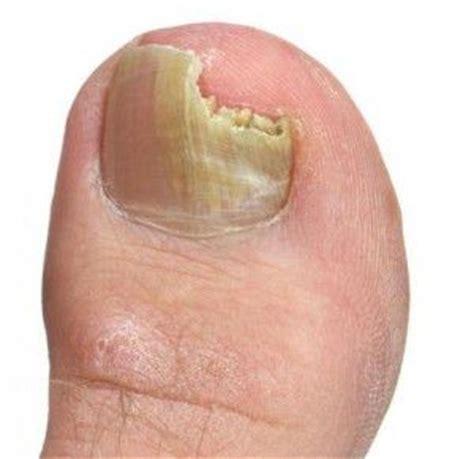 porque salen hongos en las u as tratamientos naturales para los hongos en las u 241 as de los pies