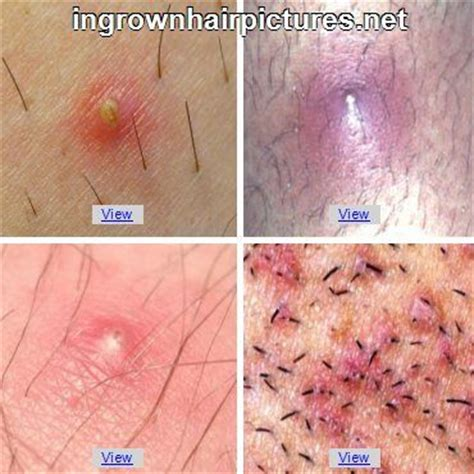 how to remove engrown hair onunderwear line 1000 images about ingrown hair on pinterest search
