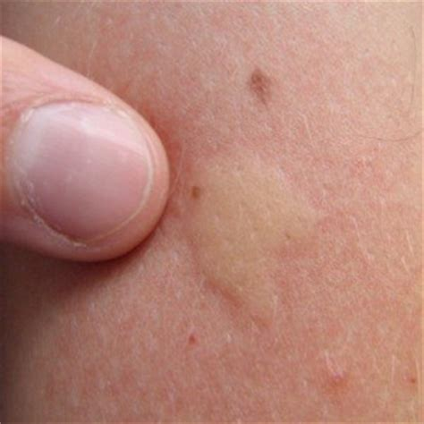 where do bed bugs bite on the body lice bites on skin pictures to pin on pinterest pinsdaddy