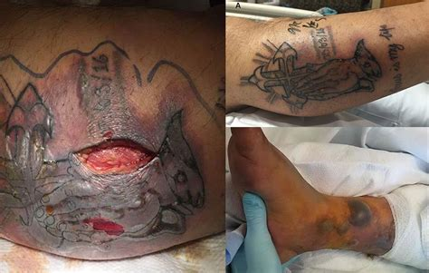 signs of infected tattoo dies after becomes infected with flesh
