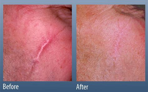 best treatment for surgical scars scar treatment line center ardmore pa