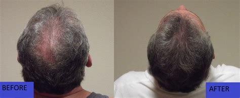 merica mexico hair transplant before and after photos hair transplant mexico