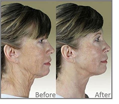 Anti Aging Dermawand dermawand complete tv kit anti aging system ebay