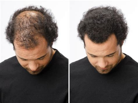 100 natural cover bald head by caboki hair fibers hyderabad caboki hair building fibers cover your bald head with in