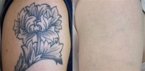 orange county tattoo removal removal before and after yelp