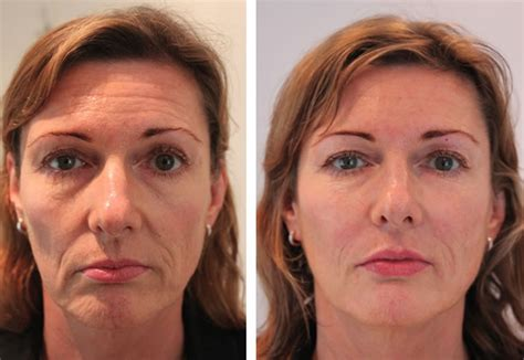 juvederm hair styles sagging jowls before and after short hairstyle 2013