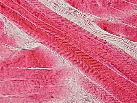 skeletal muscle longitudinal section file skeletal muscle longitudinal section jpg