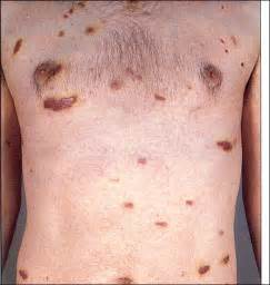 Aids symptoms aids related cancer patients