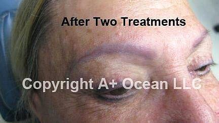 saline eyebrow tattoo removal removal non laser proskin clinic adelaide cbd
