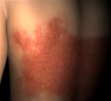is pic psoriasis the skin what condition new psoriasis psoriasis can affect more than your skin