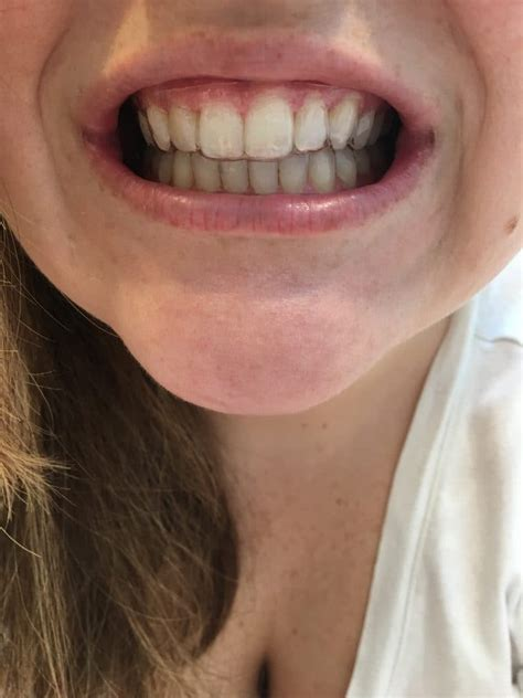 Back To Big Gap by Smile Direct Club Invisible Aligner Review Citrus