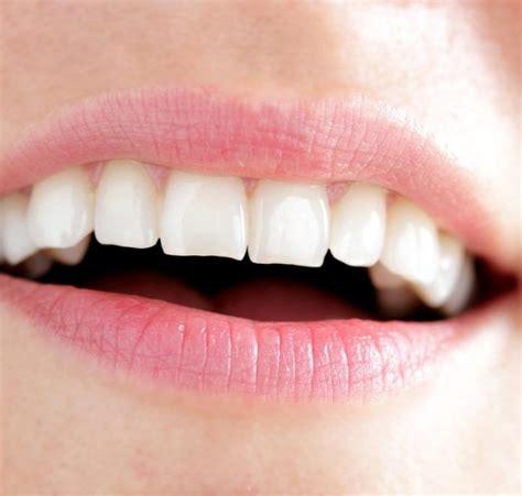 Biaya Pemutihan Gigi Jogja info kesehatan gigi perawatan gigi bleaching gigi