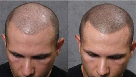 tattoo hair cost 25 best ideas about scalp micropigmentation on pinterest
