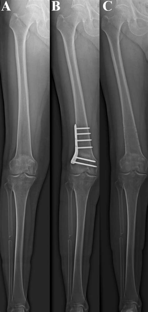 Additional distal femoral osteotomy for insufficient