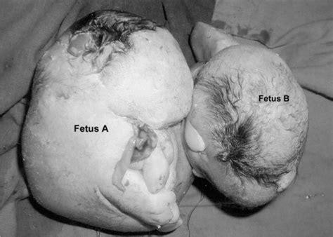 gemello testi medogoria anomalias do feto