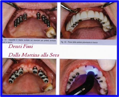 protesi dentarie mobili senza palato tecnica all on 4 dr andrea piccinini