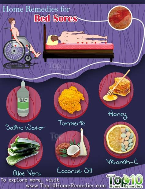 how to treat bed sores at home home remedies for bed sores top 10 home remedies