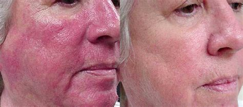 light therapy rosacea rosacea laser treatment in surrey rhinophyma vascular