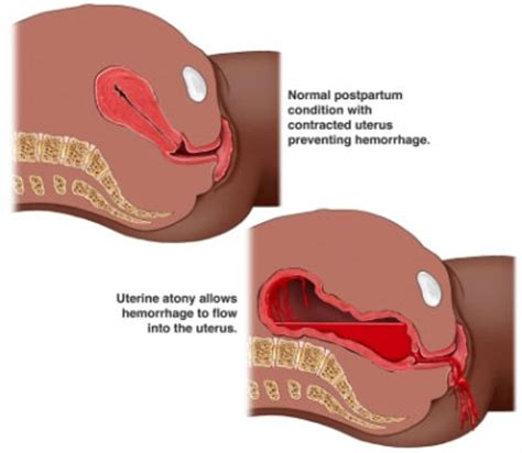 uterus shrinking after c section postpartum hemorrhage