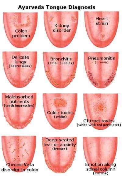 tongue color tongue health diagnosis pinnable charts the whoot