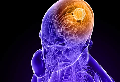 how can a live with cancer pictures guide to brain cancer gliomas glioblastomas adenomas chordomas