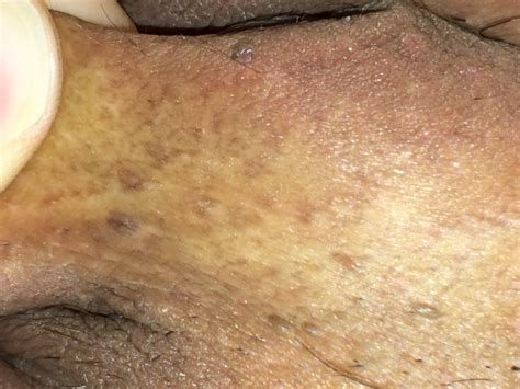 genital wart worried i might have genital warts now sexual health