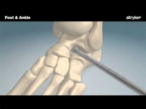 Mba Implant Surgery Foot Problems by Stryker Foot And Ankle Subfix Arthroeresis Implant