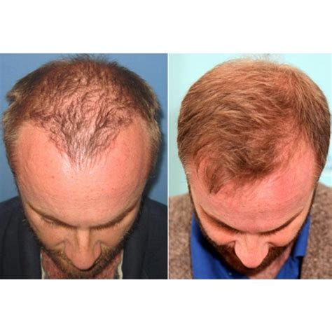 dhi hair transplant reviews dhi ireland hair loss clinic in sandyford whatclinic com